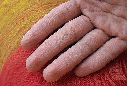 От чего появляется морщины на пальцах